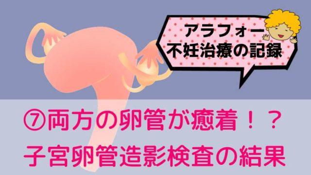 両方の卵管が癒着!?の記事タイトル画像